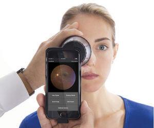 VOLK InView Fundus Camera